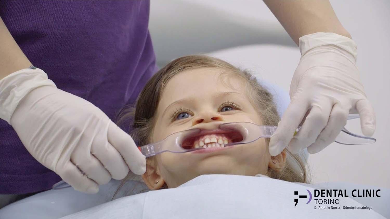 Dental Clinic Torino - Lo studio del caso