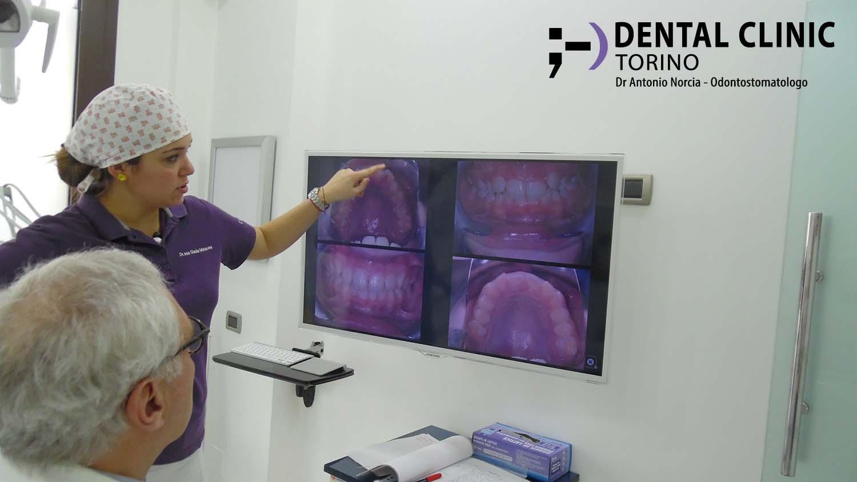 Dental Clinic Torino 10 lo studio del caso
